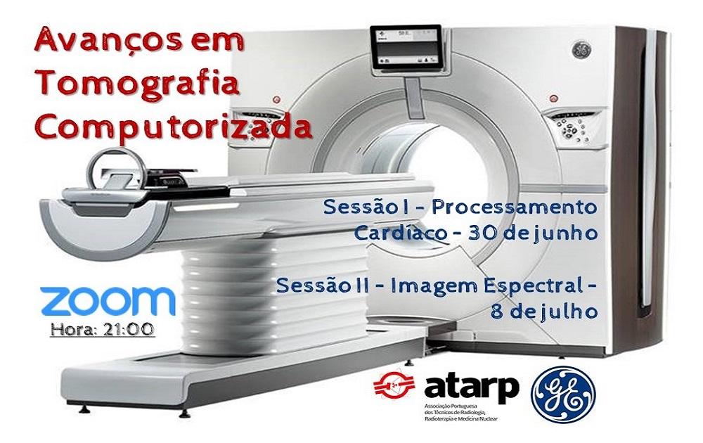 Formação Online - Avanços em Tomografia Computorizada - Sessão II
