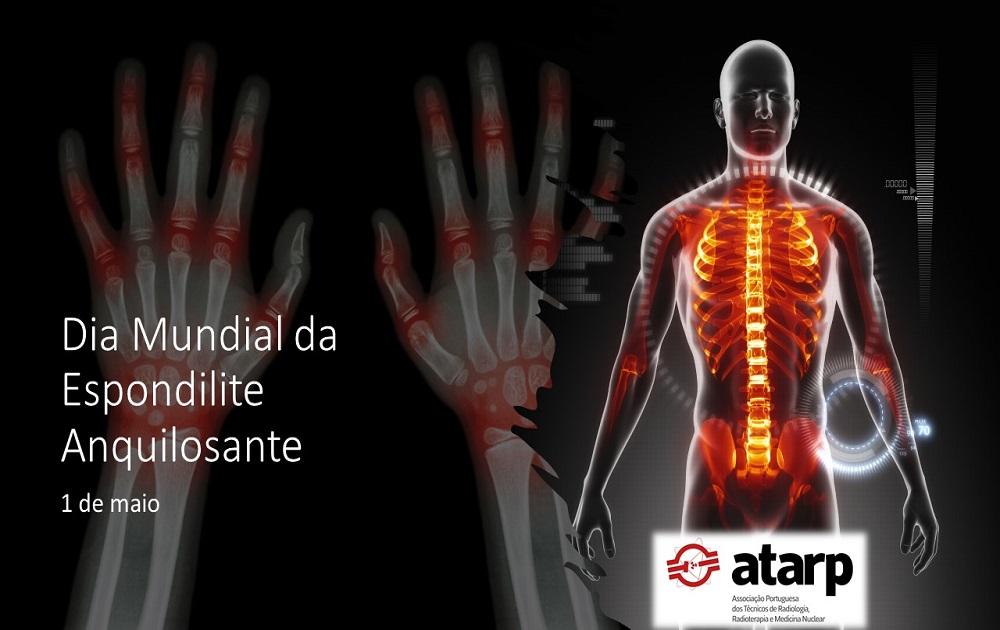 Dia Mundial da Espondilose Anquilosante