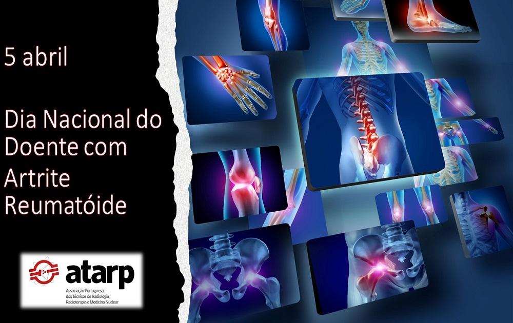 Dia Nacional do Doente com Artrite Reumatóide
